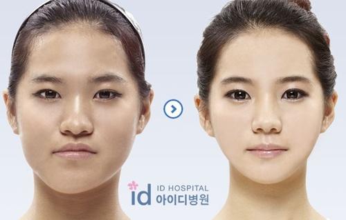 รวมภาพ Before & After สาว ๆ ที่ศัลยกรรม