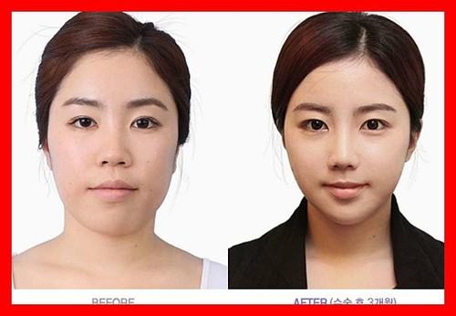 0รวมภาพ Before & After สาว ๆ ที่ศัลยกรรม